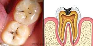 Зубы пораженные кариесом