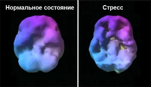 Как изменяется мозг во время стресса