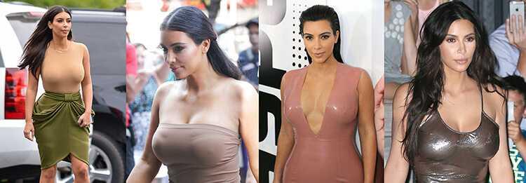 Пластика груди Ким Кардашьян