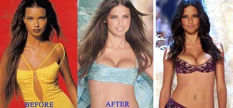 Адриана Лима увеличение груди