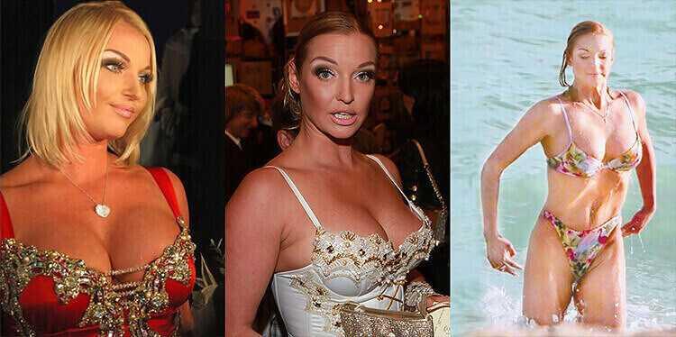 Анастасия Волочкова пластика груди