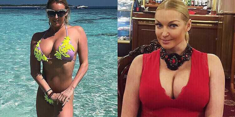 Анастасия Волочкова увеличение груди